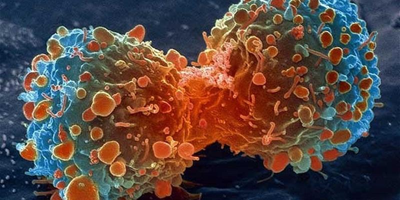 https: img-k.okeinfo.net content 2015 03 11 481 1117177 kanker-prostat-dan-kanker-payudara-saling-berkaitan-ewnuIf22Zz.jpg