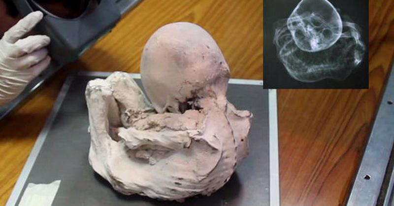 https: img-k.okeinfo.net content 2017 08 28 56 1764954 mumi-bayi-ditemukan-di-peru-merupakan-bayi-alien-benarkah-nNWVUlsOwh.jpg
