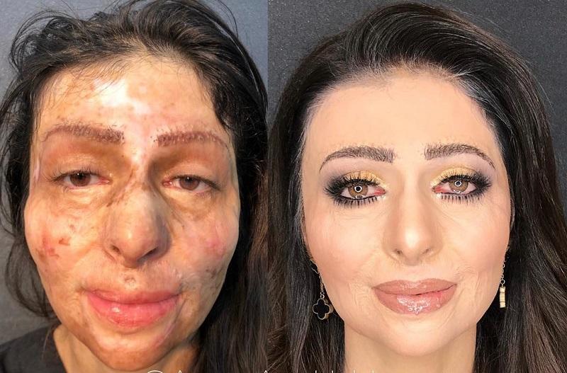 https: img-k.okeinfo.net content 2018 02 10 194 1857637 wanita-dengan-luka-bakar-di-wajah-menangis-terharu-setelah-di-makeover-mua-terkenal-WA9mTb7PtW.jpg