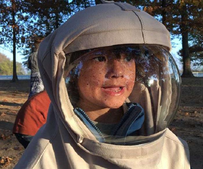 https: img-k.okeinfo.net content 2018 04 16 481 1887189 perjuangan-bocah-7-tahun-yang-idap-alergi-matahari-setiap-hari-pakai-baju-astronot-CHFoHDR6sU.jpg