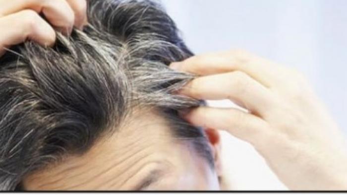 https: img-k.okeinfo.net content 2018 05 08 56 1896032 penyebab-tumbuhnya-uban-di-rambut-karena-emosi-38OsOEnIOu.jpg