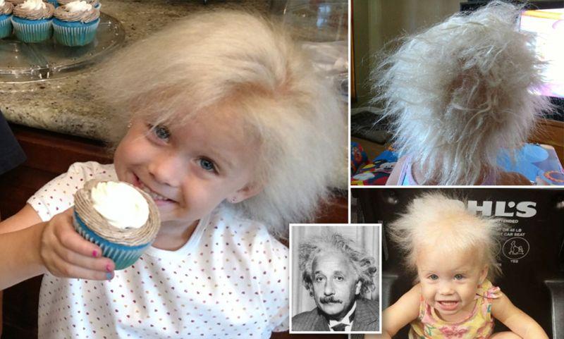https: img-k.okeinfo.net content 2018 05 09 481 1896145 kena-penyakit-langka-gadis-5-tahun-ini-punya-model-rambut-einstein-UHMPi0fRaD.jpg