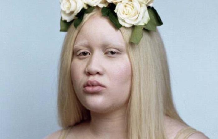 https: img-k.okeinfo.net content 2018 06 11 196 1909242 kisah-perempuan-albino-melawan-bully-hingga-rencana-bunuh-dirinya-yang-menakutkan-viral-di-medsos-IzJPinsM57.jpg