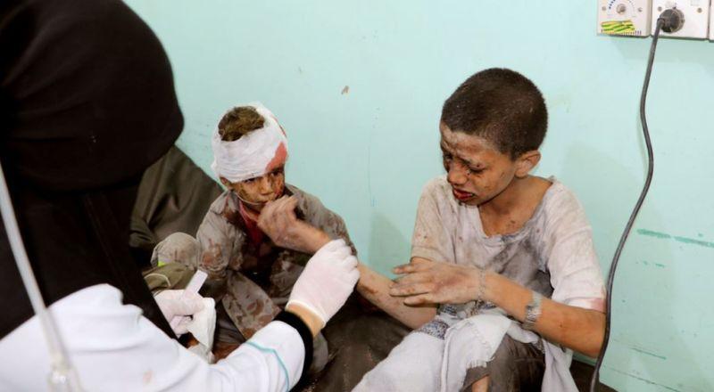 https: img-k.okeinfo.net content 2018 08 10 18 1934641 43-orang-tewas-akibat-rudal-arab-saudi-hantam-pasar-di-yaman-xGhImo3bhP.jpg