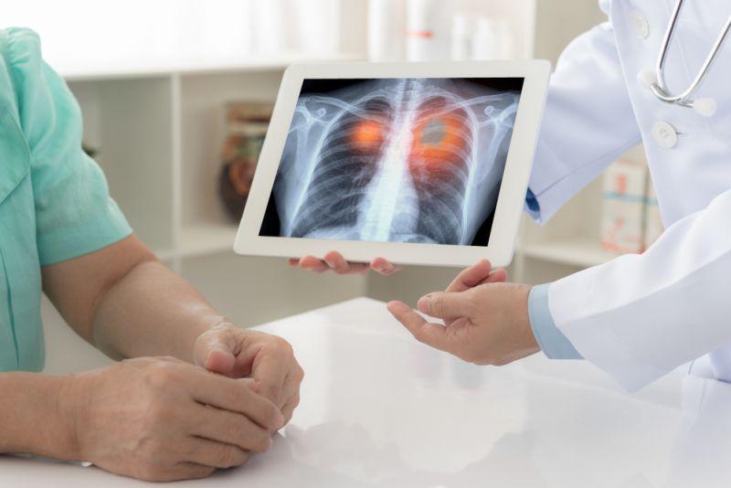 https: img-k.okeinfo.net content 2018 11 28 481 1984128 sering-tanpa-gejala-awal-kanker-paru-jadi-kanker-pembunuh-nomor-1-di-indonesia-k8wS5J2kKk.jpg