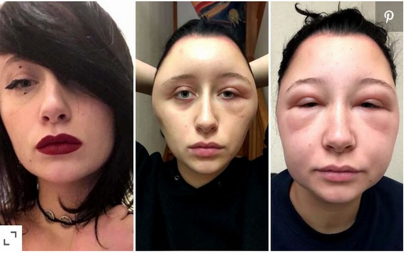 https: img-k.okeinfo.net content 2018 12 03 481 1986258 alergi-cat-rambut-kepala-wanita-ini-membesar-2-kali-lipat-MUiqzX9uL9.jpg