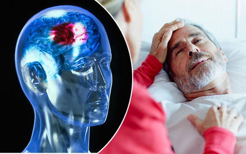 https: img-k.okeinfo.net content 2019 03 06 481 2026542 jangan-sepelekan-stroke-penyakit-yang-renggut-nyawa-luke-perry-KUJFq06Bfd.jpg