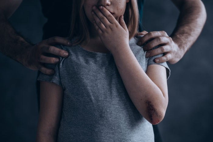 https: img-k.okeinfo.net content 2019 04 10 196 2041519 orangtua-harus-peka-kenali-tanda-tanda-anak-mengalami-kekerasan-seksual-EtKlsWGIQG.jpg