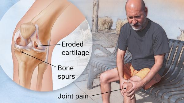 https: img-k.okeinfo.net content 2019 04 12 481 2042749 berbeda-dengan-osteoporosis-osteoartritis-bisa-sebabkan-disabilitas-zNqZVpoBDp.jpg