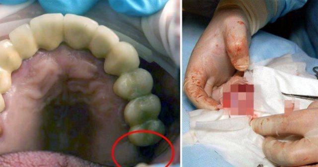 https: img-k.okeinfo.net content 2019 06 11 18 2065334 dokter-temukan-gigi-yang-hilang-tumbuh-di-testis-seorang-remaja-oIqbm2k4jh.jpg
