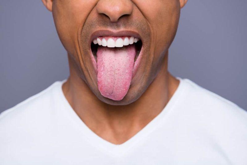 https: img-k.okeinfo.net content 2019 06 20 481 2068784 jangan-remehkan-lidah-yang-bengkak-bisa-jadi-tanda-kena-kanker-loh-Rz3mnhTDeI.jpg