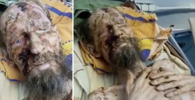 https: img-k.okeinfo.net content 2019 06 26 18 2071269 selamat-dari-serangan-beruang-pria-ini-terlihat-seperti-mumi-OqM8fbL1B7.jpg