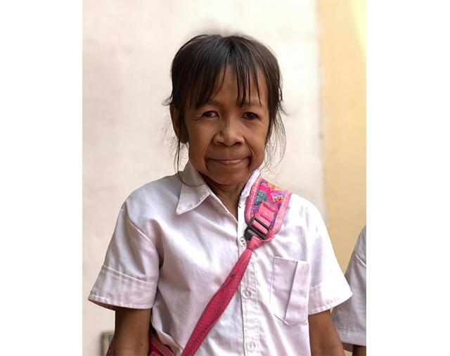 https: img-k.okeinfo.net content 2019 08 12 18 2091081 gadis-10-tahun-berwajah-nenek-nenek-saya-ingin-wajah-cantik-saya-ingin-dioperasi-4ImkbdlLIt.jpg