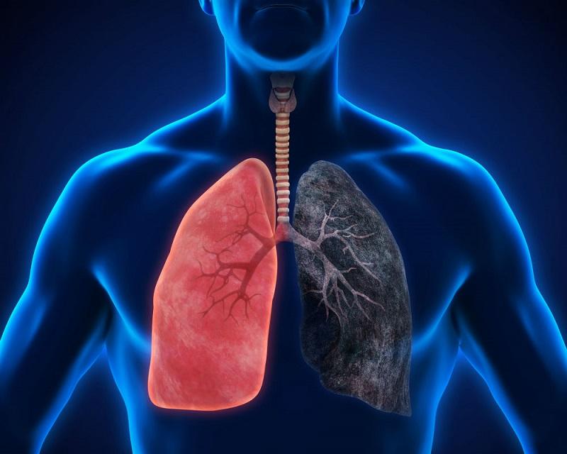 https: img-k.okeinfo.net content 2019 08 13 481 2091379 angka-penderita-makin-meningkat-kenali-dua-tipe-kanker-paru-qYbEpPgQO1.jpg