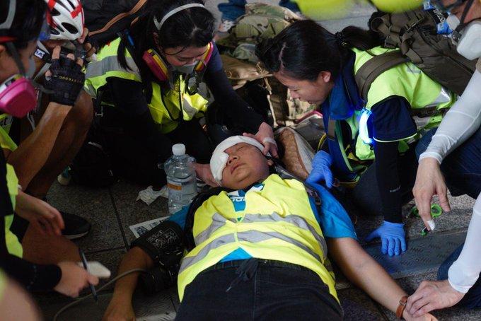 https: img-k.okeinfo.net content 2019 09 30 18 2110878 terkena-peluru-dalam-demonstrasi-hong-kong-jurnalis-indonesia-sudah-stabil-7sRtUCeX7U.jpg