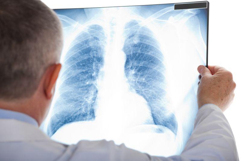 https: img-k.okeinfo.net content 2020 01 19 481 2155027 waspada-penyakit-bronkitis-bisa-menular-begini-cara-mencegahnya-5rhVi1TFHL.jpg