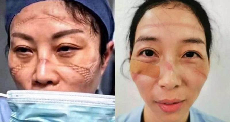 https: img-k.okeinfo.net content 2020 02 14 612 2168535 bekerja-seharian-begini-penampakan-wajah-suster-yang-rawat-pasien-covid-19-V1UhcbwwZU.jpg