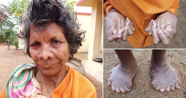 https: img-k.okeinfo.net content 2020 02 27 18 2174956 miliki-31-jari-tangan-dan-kaki-wanita-ini-dianggap-penyihir-oleh-tetangganya-QhKxxgX0n6.jpg