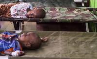 RSUD Agats Butuh Dokter Spesialis Anak untuk Tangani Pasien Gizi Buruk