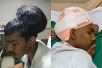 Tim Dokter di India Berhasil Angkat Tumor Otak Seberat 1,8 Kg
