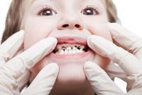 Anak-Anak Mudah Mengalami Karies Gigi dan Ini Tips Mencegahnya!