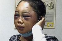 Kasus Disidangkan Kembali, Majikan Penyiksa TKW Suyanti Menghilang