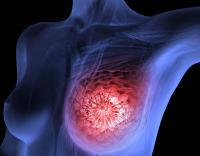 Konsumsi Kedelai Mampu Sembuhkan Penyakit Kanker Payudara