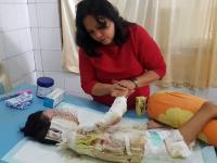 Anak 9 Tahun Disiram Cairan Kimia, Sekujur Tubuh Penuh Luka Bakar