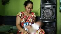 Kisah Bayi 35 Hari Asal Mojokerto yang Tak Punya Lubang Anus