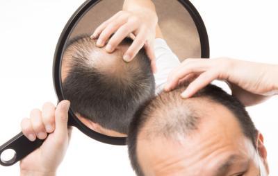Berbagai Jenis Obat Penumbuh Rambut, dari Kimiawi hingga Alami