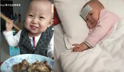 Viral karena Jago Pakai Sumpit, Haihai Kini Berjuang Melawan Leukimia