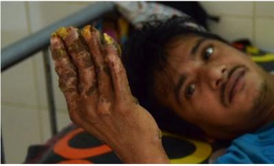 Kesakitan, Manusia Pohon Asal Bangladesh Minta Tangannya Diamputasi