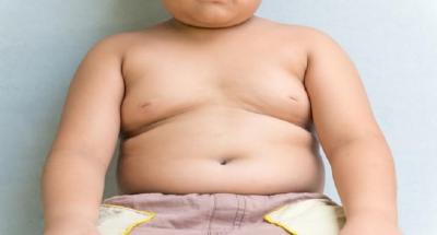 Jumlah Anak Obesitas Diprediksi Capai 70 Juta di 2025, Apa Penyebabnya?