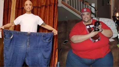 Bobotnya Nyaris 3 Kuintal, Carlos Berjuang Mati-matian Melawan Obesitas