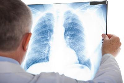 Waspada Penyakit Bronkitis Bisa Menular, Begini Cara Mencegahnya
