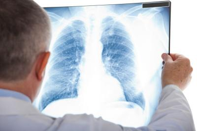 Bob Hasan Meninggal, Kenali Gejala Kanker Paru yang Mirip TB
